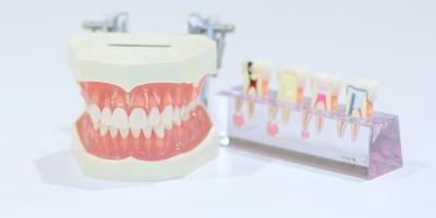 幸田町歯科医院 インプラント
