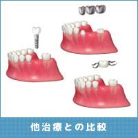 幸田町歯科 他治療との比較
