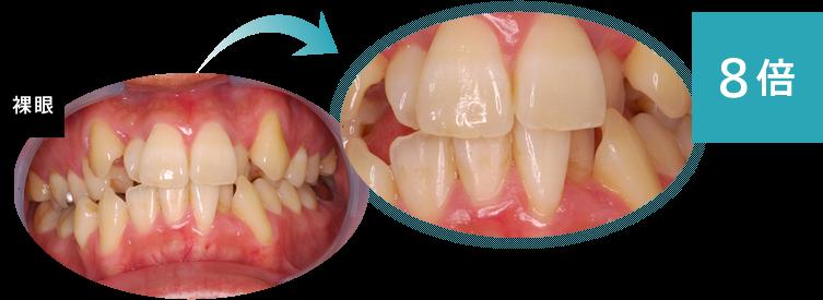 マイクロスコープ顕微鏡精密歯科治療
