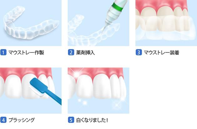 岡崎幸田蒲郡の歯医者
